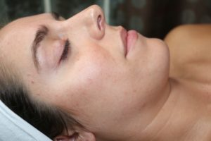 Chicago Skin Care Microdermabrasion