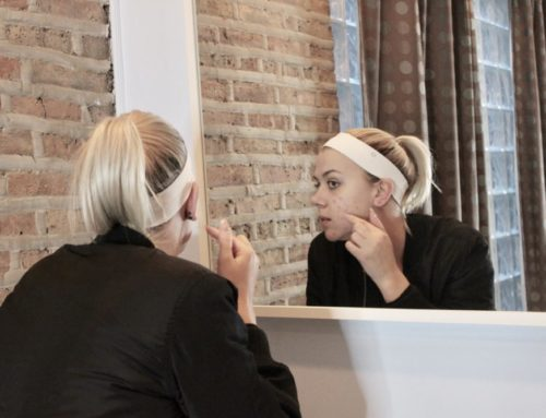 Talking About Glytone Chemical Peels and Acne with Blogger Emma Lenhart